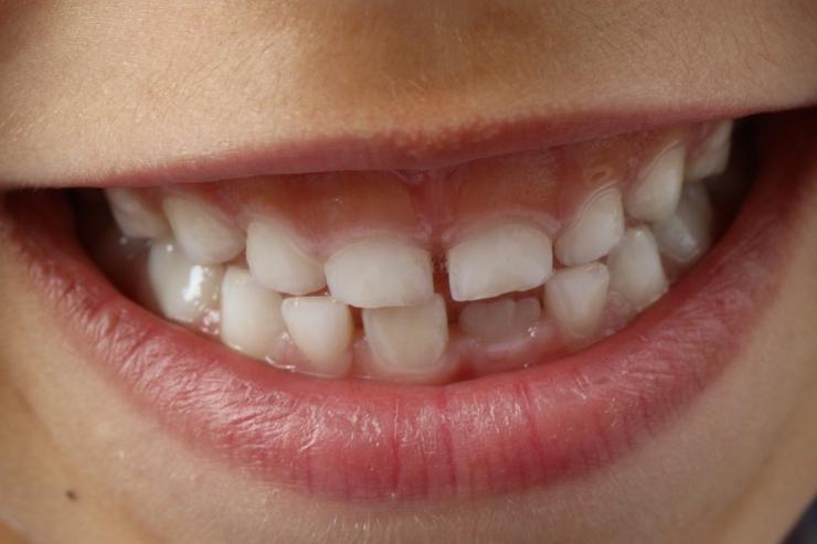 笑顔歯並び
